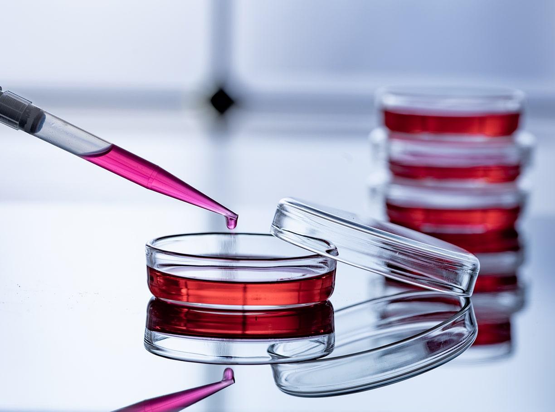 体外での増殖が困難な造血幹細胞の増殖に成功